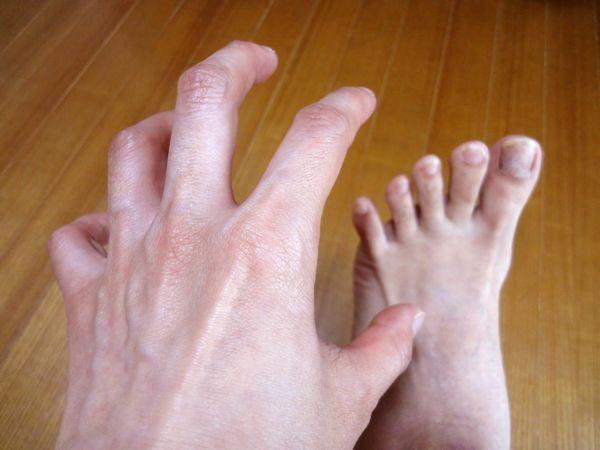 小水疱型水虫でかゆい足