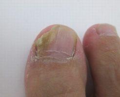 進行した爪水虫の画像