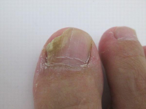 進行した爪水虫の写真