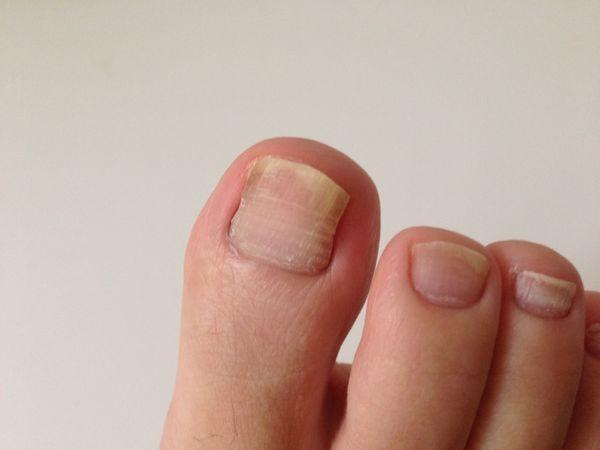 初期症状の爪水虫