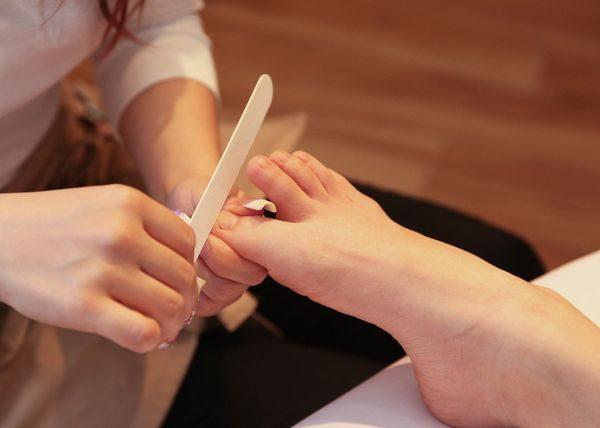 爪水虫の治療イメージ写真