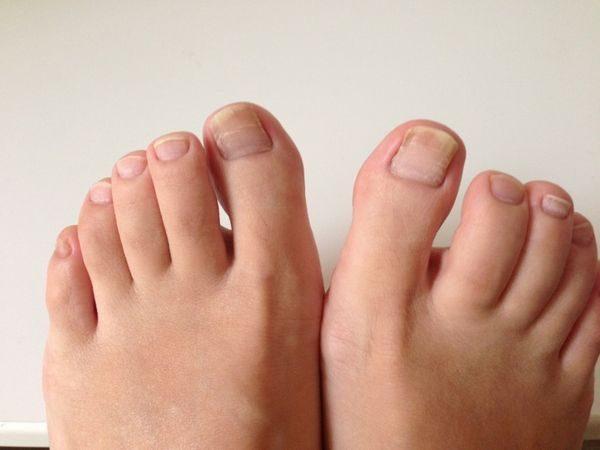 爪水虫に感染している足